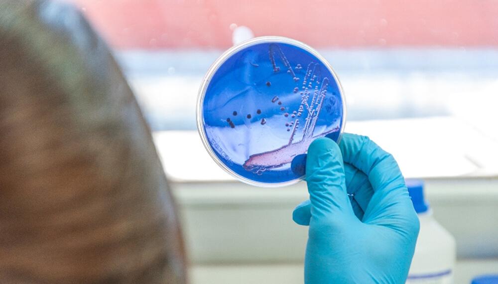 bacterias infocampo